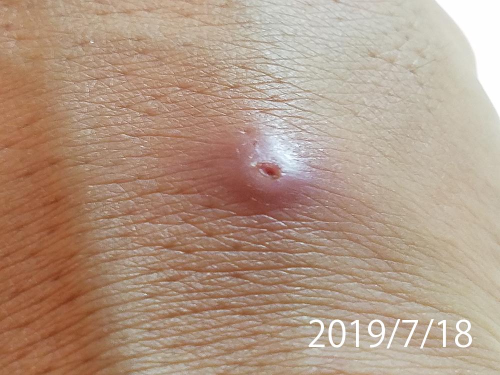 腫れ 虫刺され 痒くない ダニ刺されの症状6つ!痒くない場合もあるって本当?